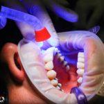 Złe podejście żywienia się to większe niedobory w zębach natomiast dodatkowo ich utratę